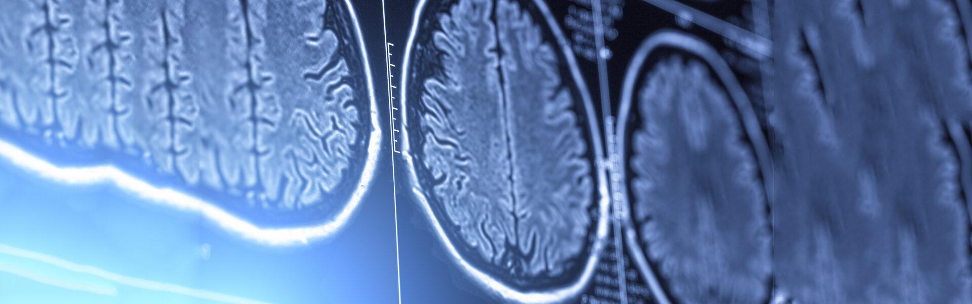 Sleep Apnea and the Brain