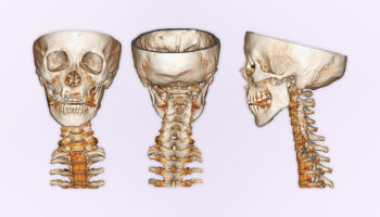 How Your Misaligned Jaws Can Cause Chronic Pain
