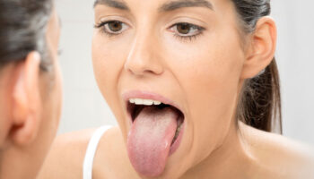 Candida Overgrowth and Oral Thrush