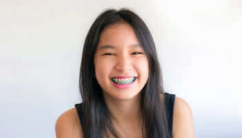 Orthodontics 101: Everything You Need to Know